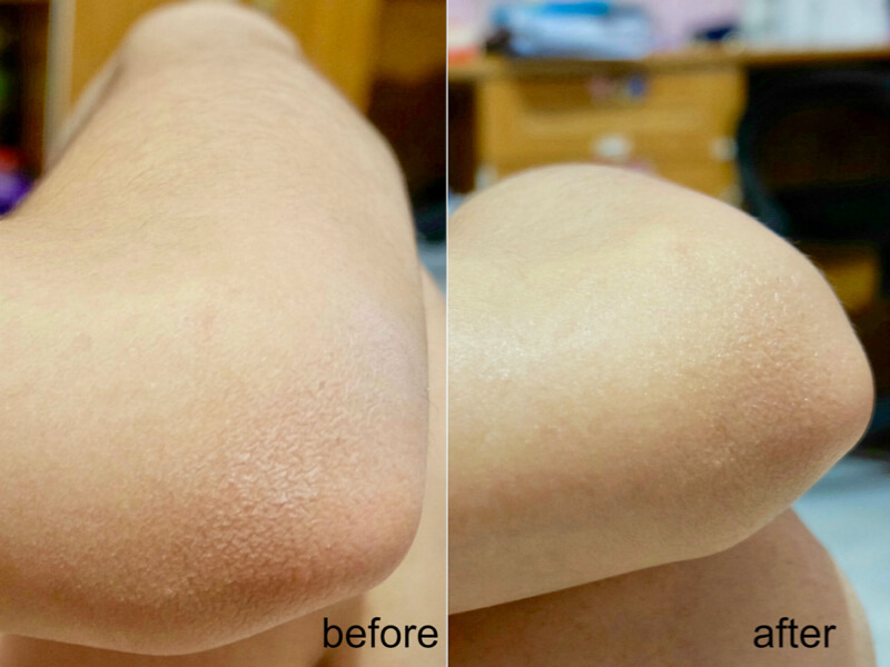 Before & after pemakaian Vaseline Advanced Strength